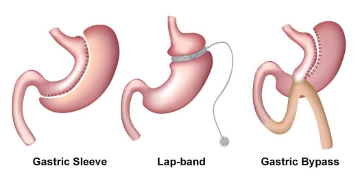 Revision_Bariatric_Surgery